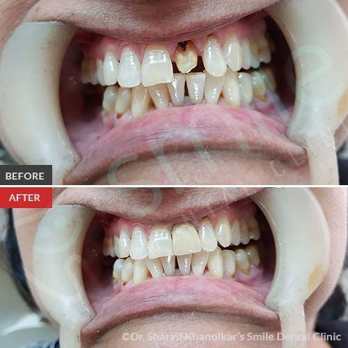 3Cosmetic-Dentistry