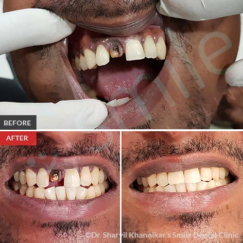 4Cosmetic-Dentistry